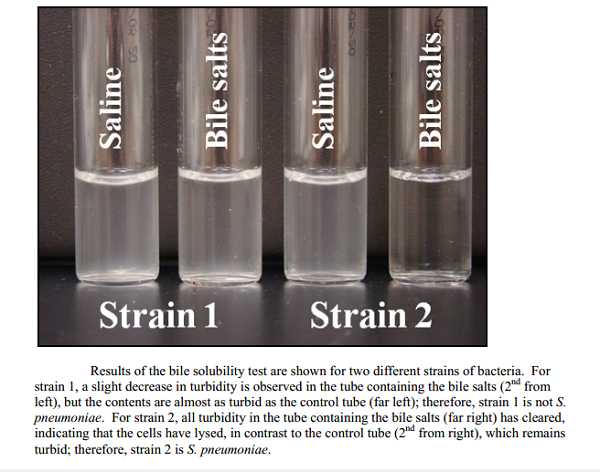 Test tube method of Bile Solubility Test