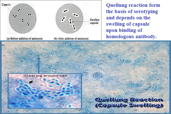 Quellung Reaction for Pneumococci